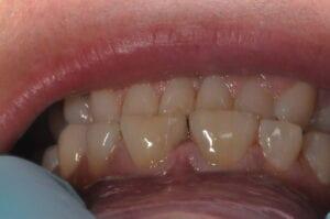 Open bite upper only before veneer 32 pearls Seattle Dentistry